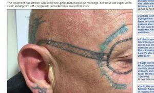 gafas_tatuaje